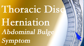 New Roads Chiropractic Center cares for thoracic disc herniation that for some patients prompts abdominal pain.