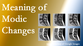 New Roads Chiropractic Center sees many back pain and neck pain patients who bring their MRIs with them to the office. Modic changes are often noted.