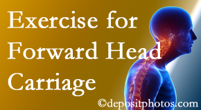 New Roads chiropractic treatment of forward head carriage is two-fold: manipulation and exercise.