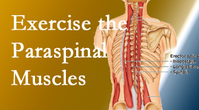New Roads Chiropractic Center describes the importance of paraspinal muscles and their strength for New Roads back pain relief.