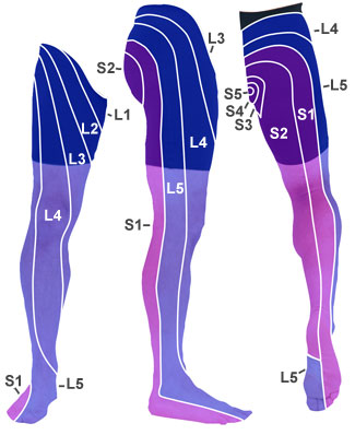 image of leg pain diagram